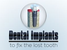 A dental implant is an artificial tooth root that is placed into your jaw to hold a replacement tooth or bridge. Dental implants may be an option for people who have lost a tooth or teeth due to periodontal disease, an injury, or some other reason. Dental Hygiene, Dental Health, Dental Care, Dental Veneers, Dental Braces, Emergency Dental Treatment, Implant Dentist, Tooth Replacement, Dental Bridge