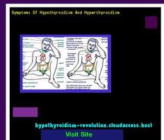 Symptoms Of Hypothyroidism And Hyperthyroidism 120110 - Hypothyroidism Revolution!