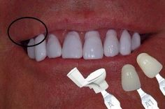 What do you do when your patient wants Toilet Bowl Shade A? Do you give them what they want or talk them into a more natural shade? Dentaltown Message Board Cosmetic Dentistry http://www.dentaltown.com/MessageBoard/thread.aspx?s=2&f=101&t=244517&v=1.    #cosmeticdentistry #dentist #dentalassistant #dentalstudent #prosthodontist #dentaltown