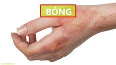 BỎNG: Các cấp độ – Cách xử lý sơ cứu – Cách chữa điều trị (Tại nhà) Bongs, Pipes