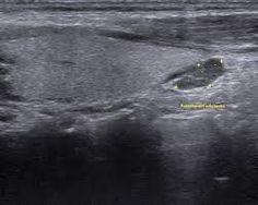 Nephrolithiasis case study ultrasound