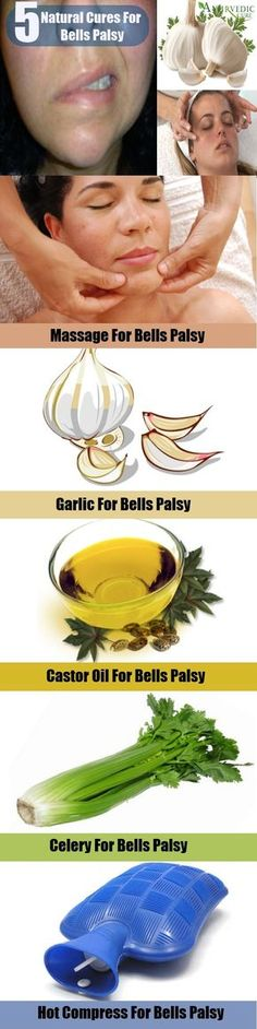Suffering From Bells Palsy? Try these natural treatments :) And you might want to check into this: My mom was one in I can't remember to have Bells Palsy and it was a sign of lung cancer. It's not always the case but please check into it. Just in case. I wish I would of known that when she started to have this. We could of caught the cancer at it's starting point... and then maybe we would of had a chance...