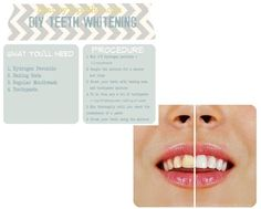 Teeth Whitener: Polish those pearly whites without emptying your pockets for strips or professional treatments.