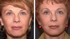 Facial Toning Wars: Do They Work For Getting Rid Of Creases And Firming Sagging Skin?