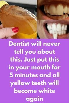 Dentist will never tell you about this. Just put this in your mouth for 5 minutes and all yellow teeth will become white again Your smile can say many things without a word and a shining set of super white teeth can make your more attractive. Most common cause of yellowish teeth is our own lifestyle, daily consumption of tea, coffee, tobacco and cigarettes. If you wish to get rid of yellow teeth, you can try some natural remedies. There …