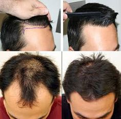 The Best Hair Transplant Procedure for Men | Hair Transplant ~ SK Health