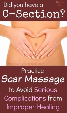 Massage that c-section scar to avoid adhesions - scar tissue which binds organs together causing serious problems.