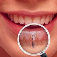 Dentist Baltimore MD, Cosmetic Dentistry in Baltimore, Dentist Dental Wallpaper, Dentist Near Me, Titanium Metal, Baking Soda And Lemon, Dental Assistant Jobs, Dental Art, Cosmetic Dentistry, Dental Implants, Braces Smile