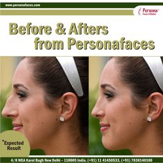 The shape of the nose is an important facial feature. A small correction often results in a considerable improvement in one's appearance.Check out more