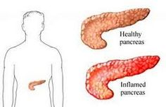 Inflamed Pancreas - ways to help reduce the inflammation/pain