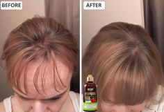 Saw Palmetto Extract Saw palmetto works to stop hair loss by blocking DHT, the hormone responsible for hair loss. It is also rich in fatty oils that help stimulate hair growth. Natural Hair Care Tips, Natural Hair Growth, Natural Hair Styles, Quick Hair Growth, Hair Growth Tips, Hair Remedies For Growth, Hair Loss Remedies, Beauty Skin, Hair Beauty