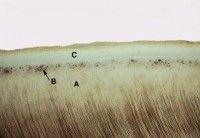 tomes granular layer