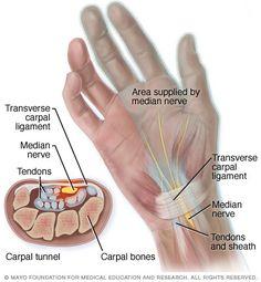 Illustration of carpal tunnel anatomy
