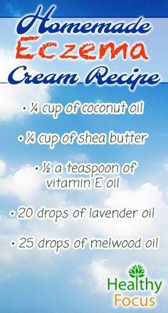 mig2-Homemade-Eczema-recipe.jpg (322×600)