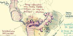 Medicina digestiva – La Chuleta de Osler