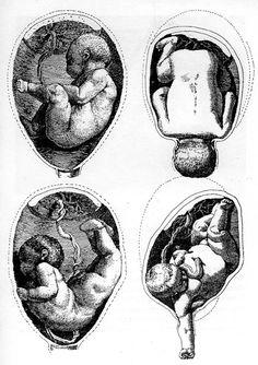 Leonardo Da Vinci. The first ever drawing of a fetus