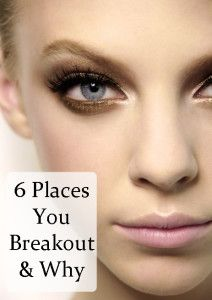 Decode Breakouts- Solve Your Acne Problems Interesting. This is good to know.