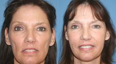 Nasolabial Lines And Smoker's Wrinkles Eradication The Face Revitalization Aerobics Way