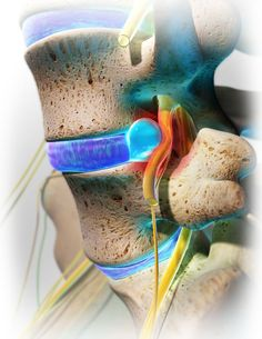 When a patient feels pain due to a herniated disc, the pain is not from the disc itself, rather it's from the disc protruding onto a nerve. Brain Nerves, Disk Herniation, Spondylolisthesis, Radiculopathy, Human Body Anatomy, Yoga Anatomy, Back Surgery, Spine Health, Back Pain Exercises