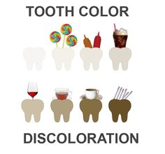 Tooth discoloration may be described as intrinsic, extrinsic or a combination of both. It varies in appearance, cause, severity, position and adherence to the teeth.