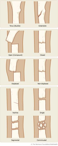 Different Types of Bone Fractures Repinned by  SOS Inc. Resources  http://pinterest.com/sostherapy.
