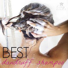 World's Easiest Dandruff Shampoo