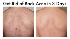 How to Get Rid of Back Acne At Home in 3 Days - YouTube