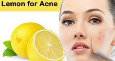 Cara Menghilangkan Jerawat Secara Alami dengan Lemon -Di dalam jeruk lemon terkandungasam sitratdan kaya akanvitamin C.Asam sitratdapat membantu...