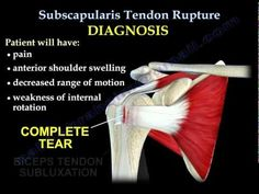 Subscapularis Tendon Rupture - Everything You Need To Know - Dr. Nabil E. Tendon Tear, Physical Therapy School, Bicep Tendonitis, Rotator Cuff Tear, Psoas Release, Shoulder Injuries, Psoas Muscle, Physical Therapy, Health