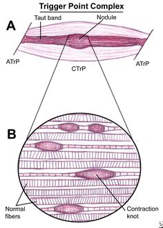 Schematic of a trigger point complex of a muscle ...