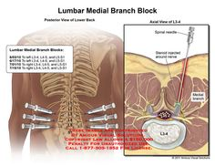 When the needle is in place, the physician injects numbing medicine onto the nerves. Spondylolisthesis, Home Doctor, Pain Management, Chronic Pain, Doctors, Anatomy, Medicine, Dads, Science