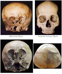 Starchild Skull - difference between normal and starchild skull