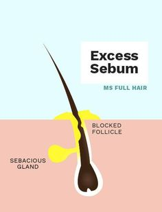 Hair Growth Article: Cedarwood essential oil clears excess sebum to prevent premature hair loss