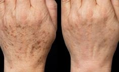 S touto maskou zabudnete na botox: domáca maska, ktorá vymaže všetky vrásky! Skin Care Regimen, Skin Care Tips, Beauty Skin, Health And Beauty, Brown Spots On Hands, Age Spot Removal, Beauty Hacks Eyelashes, Remover Manchas, Acne Scar Removal