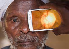 The Portable Eye Examination Kit (Peek)