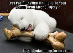 Ever wonder what happens to your femur head after surgery? MyHipReplacementSurgery.com