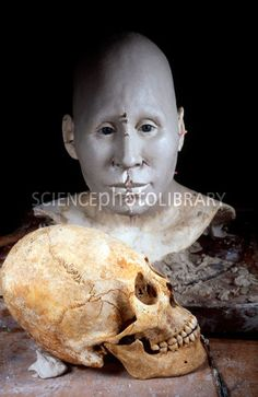 Reconstruction of an Ostrogoth woman. Sculpture of the head and face of a woman who lived in the 5th century CE and died aged 35-40. Her skull (foreground) was discovered in Globasnitz (Carinthia, Austria) and was intentionally deformed at birth, a common practice since the Neolithic era. Photographed at the Daynes Studio, Paris, France.
