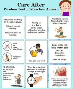 Dental Extraction, Tooth Extraction Aftercare, Tooth Extraction Healing, Food After Tooth Extraction, Wisdom Teeth Removal Recovery, Wisdom Teeth Removal Food, Wisdom Tooth Recovery, Wisdom Teeth Aftercare, Food After Wisdom Teeth