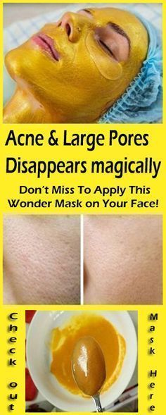 """Wonder Mask on Your Face and Watch Your Acne & Large Pores Disappear Magically! """"""""Apply This Wonder Mask on Your Face and Watch Your Acne & Large Pores Disappear Magically! Face Scrub Homemade, Homemade Face Masks, Homemade Recipe, Natural Treatments, Skin Treatments, Skin Care Regimen, Skin Care Tips, Tumeric Masks, Tumeric Face"""
