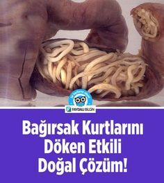 Vücuttaki Bağırsak Kurtlarını Döken En Etkili Doğal Çözüm! #sağlık #bağırsak #kurt #parazit