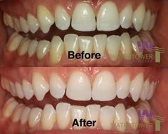 Translucent teeth can signal that something serious is going on with your teeth. Find out how to fix translucent teeth before the problem gets worse here!