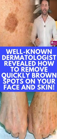 Well-known Dermatologist Revealed How To Remove Quickly Brown Spots On Your Face And Skin! Well-known Dermatologist Revealed How To Remove Quickly Brown Spots On Your Face And Skin! How To Get Rid, How To Remove, Health Diary, Brown Spots On Skin, Age Spots On Face, Facial Brown Spots, Dark Spots On Legs, Black Spots On Face, How To Cure Anxiety