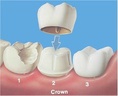 Enhance your teeth's beauty with #dentalcrownsandbridges. These are one of the most efficient tools to treat from tooth decay to severe tooth damage. Not only that, but #dentalcrowns also align your teeth if they are irregular.