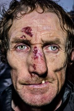 Pain is skin deep: Extreme close-up portraits of people on the edge | Dangerous Minds