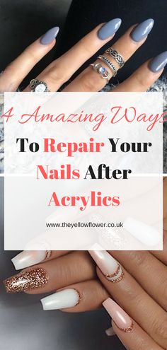 Damaging your nails can be very easy and sometimes we don't even realise that they are damaged. When nails we get are nails done with acrylics/gels, our nails can get damaged and we need to know what to do. So here are 5 Amazing Ways To Repair Your Nails After Acrylics. #nails#acrylics#repair#easy#quick#techniques#2018#athome#DIY#acetone#HowToTake#strengthen#afteracrylics
