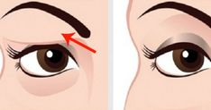 If you have droopy, saggy eyelids, there's no doubt that you'll want to do something about them, right?