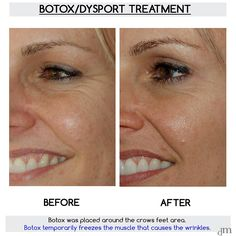 Check out another amazing #Botox result by Dr. David Mabrie!    #beforeandafter #injectable #nonsurgical #beauty #dysport  #wrinkles #finelines #youthful #appearance