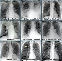 The Radiology Assistant : Chest X-Ray - Lung disease Icu Nursing, Nursing Notes, School Nursing, Nursing Programs, Medical Science, Medical Technology, Technology Careers, Technology Innovations, Technology Articles