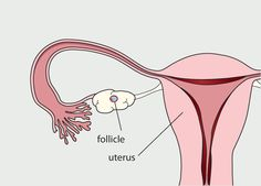 Diagram of the female reproductive system. A follicle has developed and reached maturity. The lining of the uterus has started to thicken.