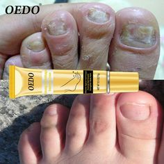 Professional Ginseng Nail Repair Cream Anti Fungal Nail Foot Toe Finger Protector Skin Care Fungus Treatment is cheap, other nail art tools are on sale now. Fungal Nail Treatment, How To Grow Eyebrows, How To Apply Makeup, Nail Fungus Removal, Uv Lack, Dental, Nail Repair, Nail Arts, Shopping